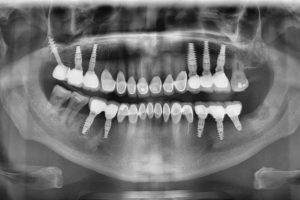 Стоматология / Имплантация