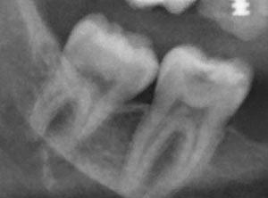 Услуги рентгена зубов в Москве