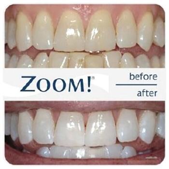 Zoom-3 отбеливание зубов