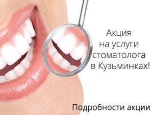 Акция на услуги стоматолога в Кузьминках