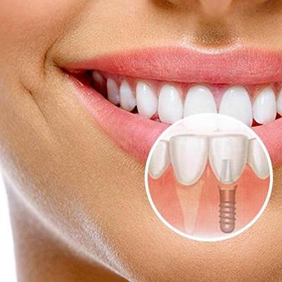 Имплантация – прогрессивный метод протезирования зубов