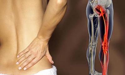 Неврит седалищного нерва (ишиас)