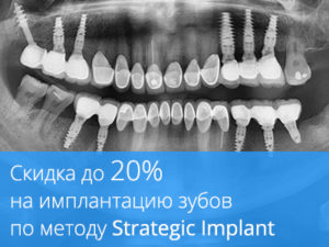 Скидка до 20% на имплантацию зубов по методу Strategic Implant!