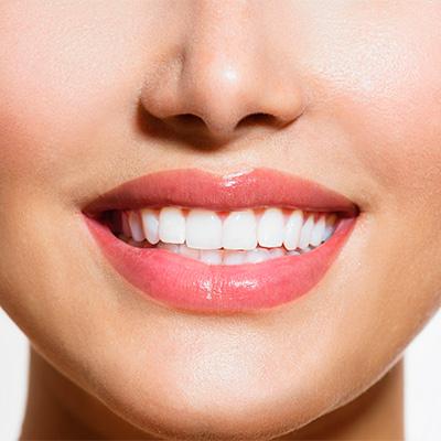Когда необходима эстетическая стоматология